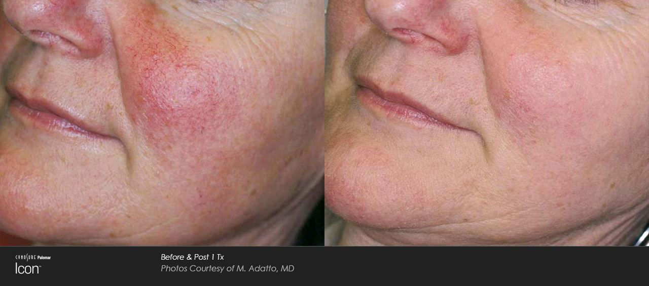 Rosacea IPL before and after
