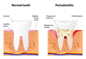 The Relationship Between Crowns and Root Canals