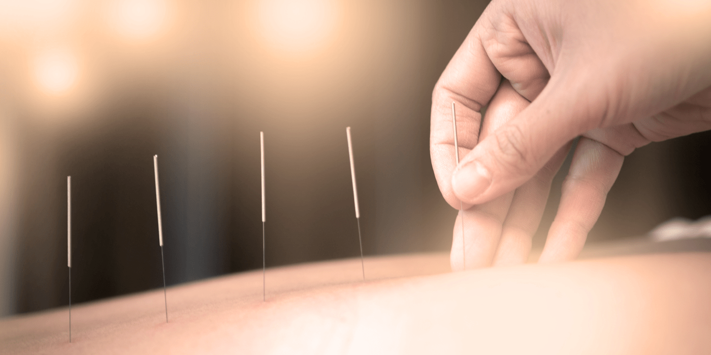 Acupunture needles in back