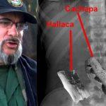 Encuentran cachapas, tequeños y restos de hallaca en estómago de «Timochenko»