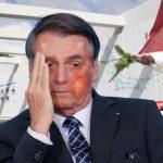 Quemaduras en rostro de Bolsonaro tras caerle agua bendita