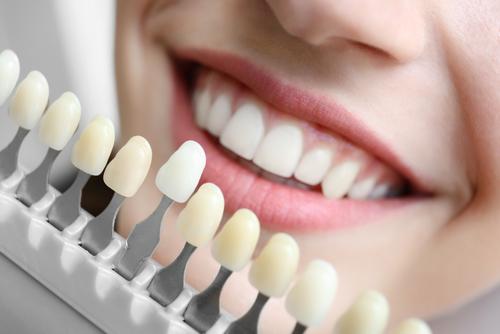 dental veneers aston