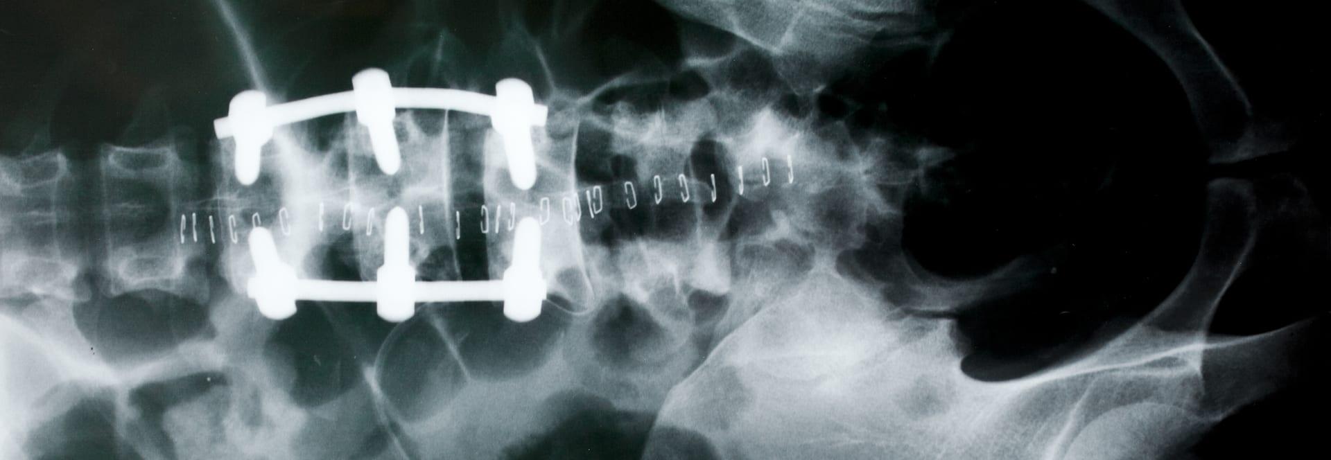Spinal Injury Atlanta