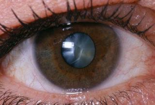 princ rm photo of close up of eye