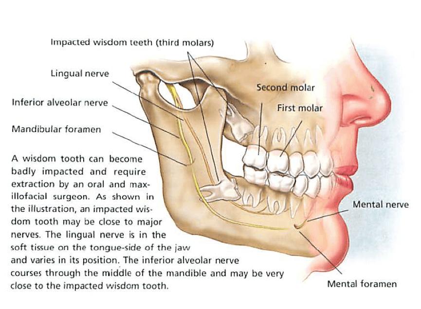Wisdom tooth diagram