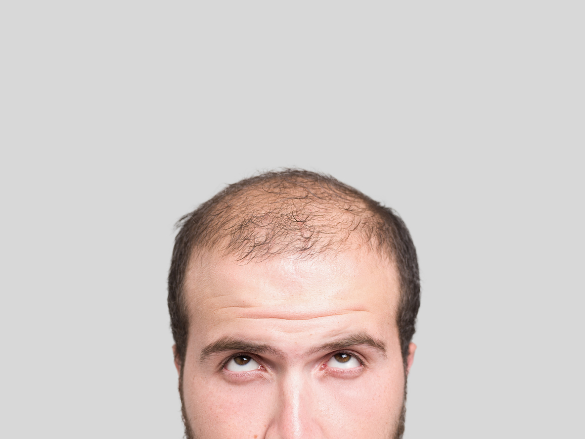 male pattern alopecia