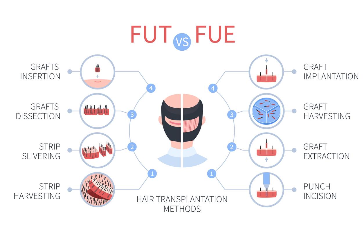 FUT vs. FUE hair transplant