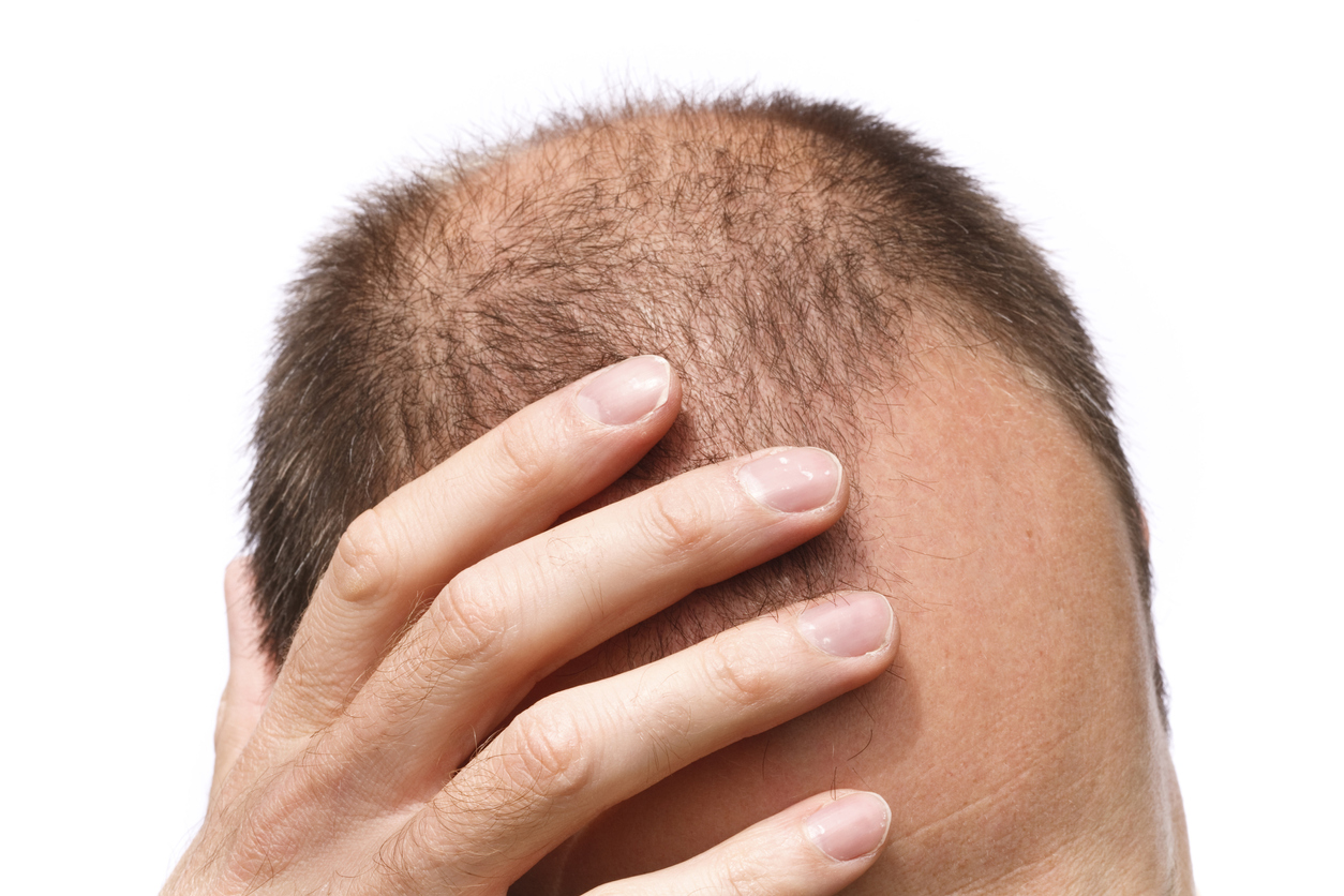 Androgenetic Alopecia (male pattern hair loss)