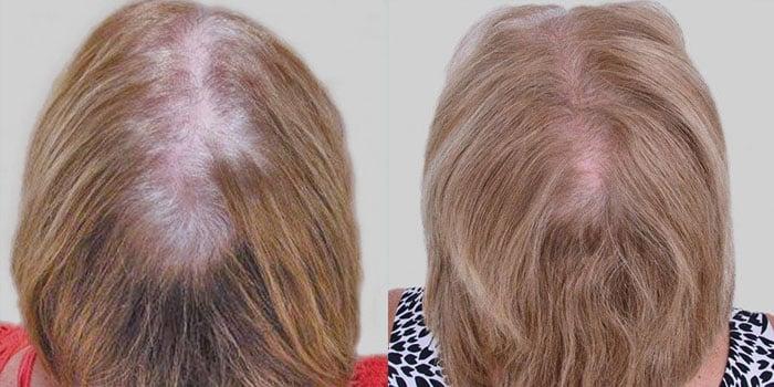 Female patient using Capillus LLLT