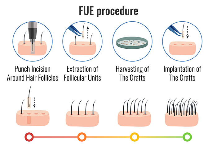 Follicular Unit Extraction at Best Hair Transplant