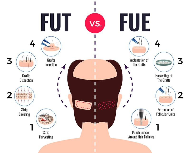 FUT vs FUE hair transplants