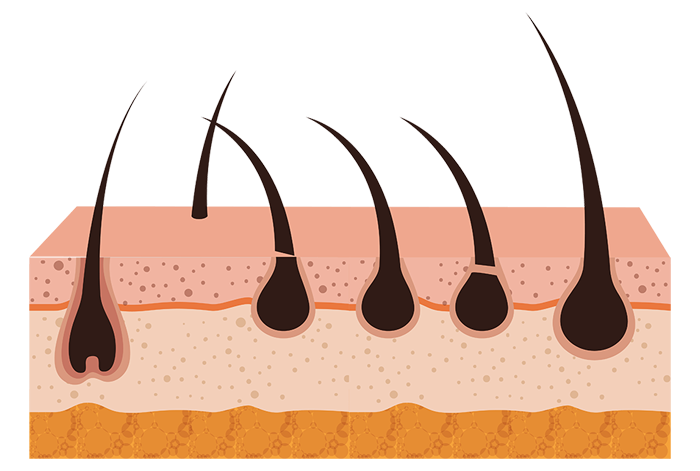 Follicle growth from laser hair therapy