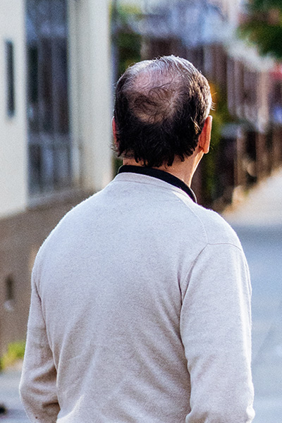 Stop balding in it's tracks