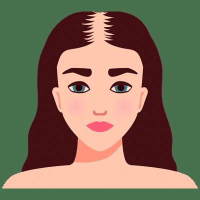 balding woman