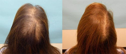 convenient laser hair restoration for women