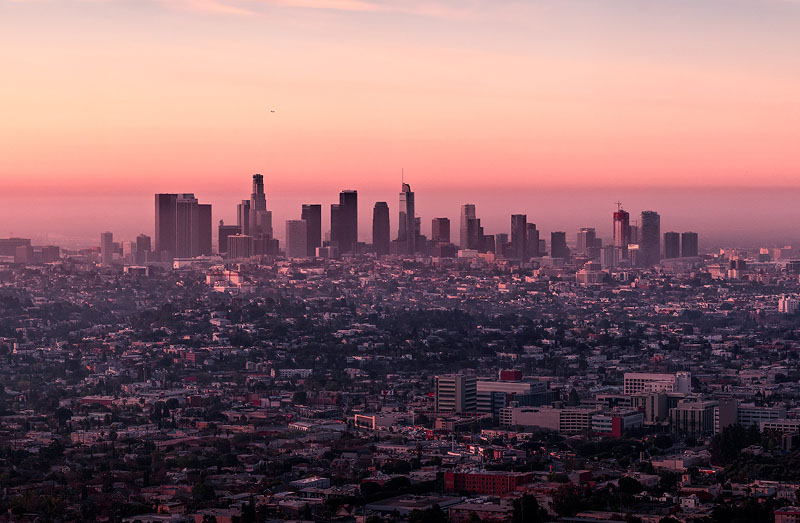 Best Hair Transplant Has the Best Hair Transplant Prices in Los Angeles