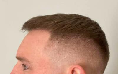 The Real Deal on Hair Transplants – Expensive Doesn't Always Mean Better