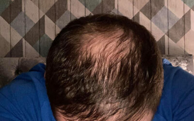 We Offer the Best Prices on FUE Transplants