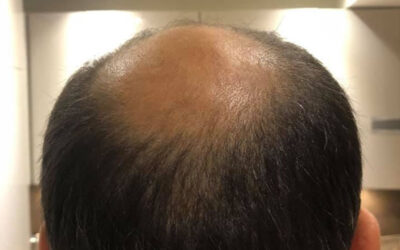 Where Can I Find the Best Hair Transplant Prices?
