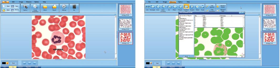 Contagem de células automática no software do Microscópio Trinocular