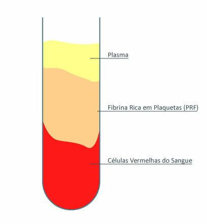 fibrina Esquema de extração