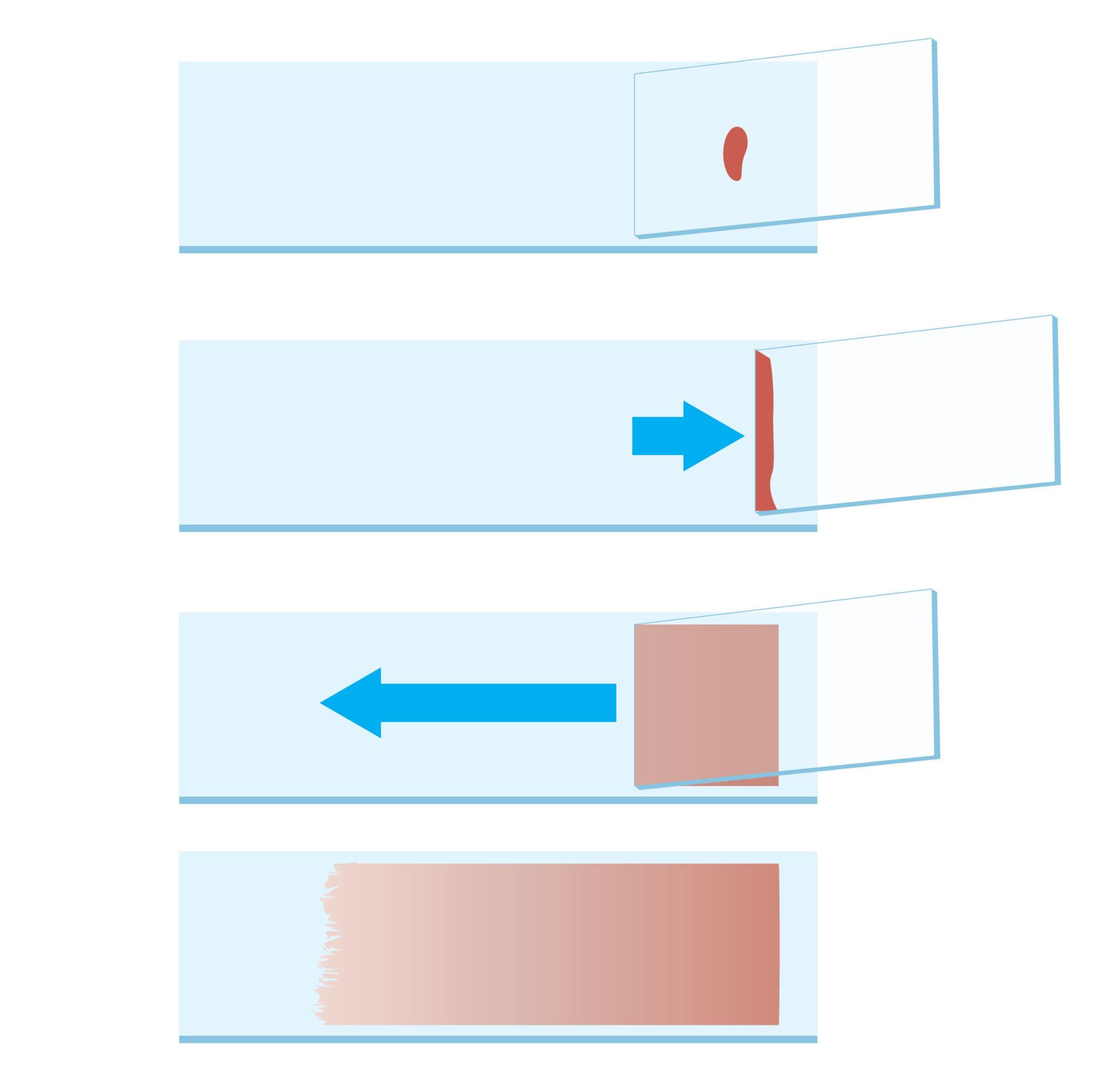 Técnica de Esfregaço de sangue