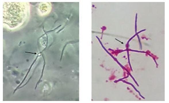 Bactérias (bacilos Gram-negativos) formando filamentos e esferoplastos. Microscopia de contraste de fase (A) e coloração de Gram (B)*