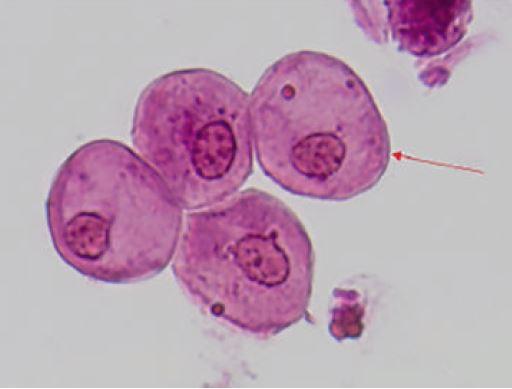 Células epiteliais escamosas coradas.