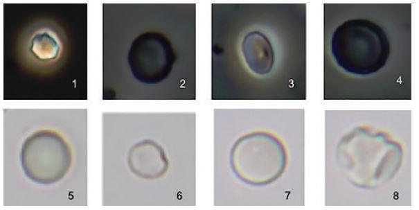 Eritrócitos normais. Microscopia de contraste de fase