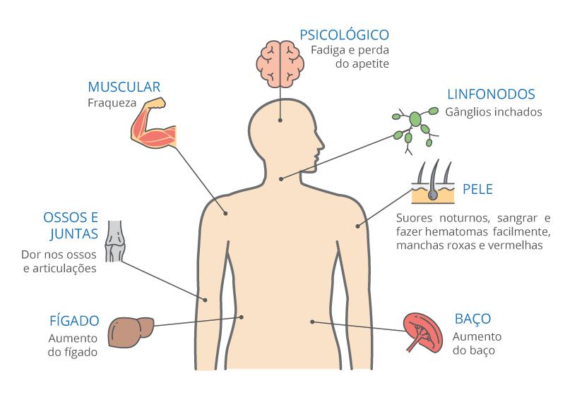 Sintomas da Leucemia