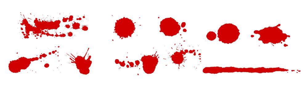 hematologia Forma da Mancha