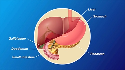 The pancreas is about 6 inches long and sits across the back of our abdomen, behind the stomach. When the pancreas malfunctions, it shows up as diabetes.