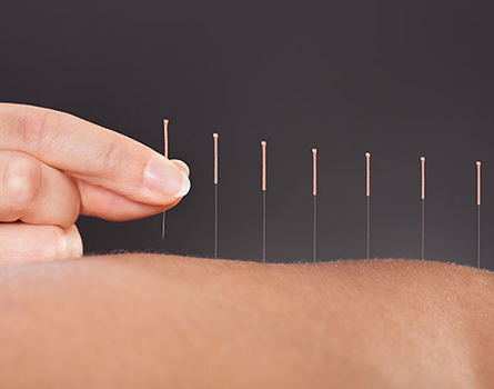 Dry needling/ IMS & Acupuncture