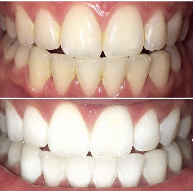 DaVinci Teeth Whitening Products