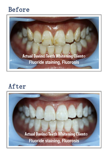 organic teeth whitening