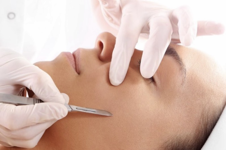 What is Dermaplaning? What are the Benefits?