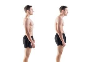 Poor Posture