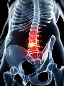 Herniated Disc in Denver