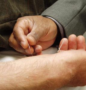 dry needle treatment