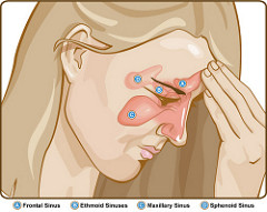 sinus infection and chiropractic