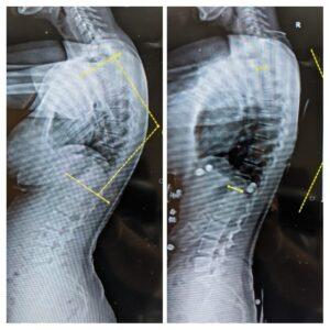 Kyphosis X-ray
