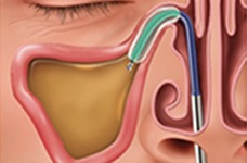 Balloon Sinuplasty Texas Sinus and Snoring Spring, Houston TX