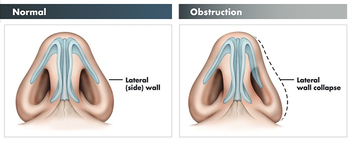 Nasal Valve Reconstruction Spring and Houston TX