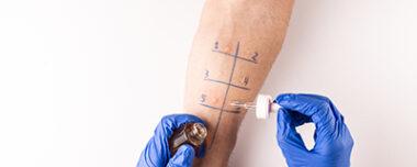 Allergy Testing Skin Prick Test