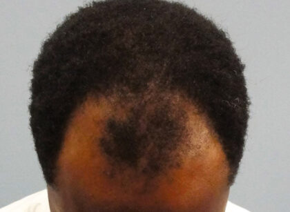 Understanding hair and its loss