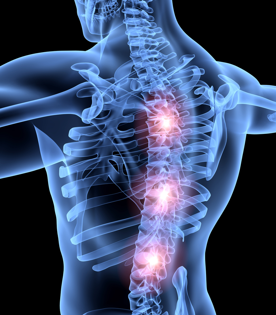 Exciting New Research Offers Hope for Spinal Cord Injury Patients