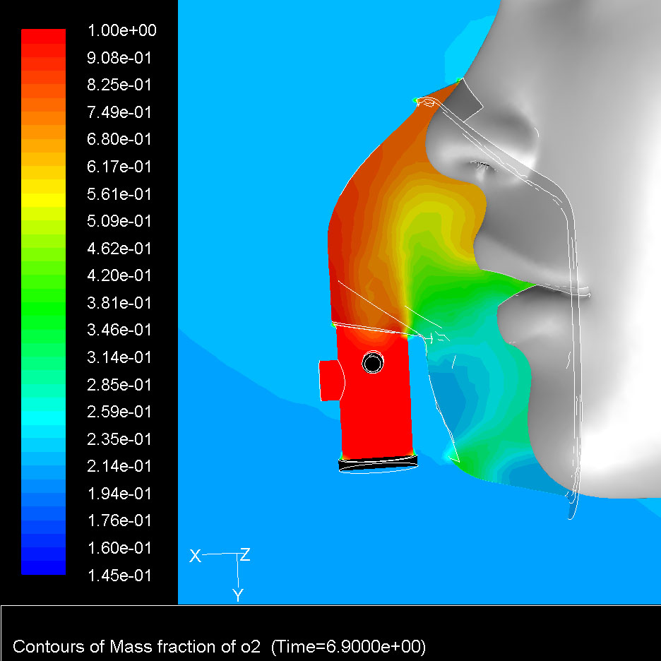 CFD Analysis of Aerosol Mask Using a Breathing Model