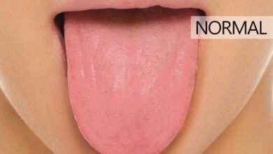 Photo of 15 Signs Your Tongue Shows For Different Diseases