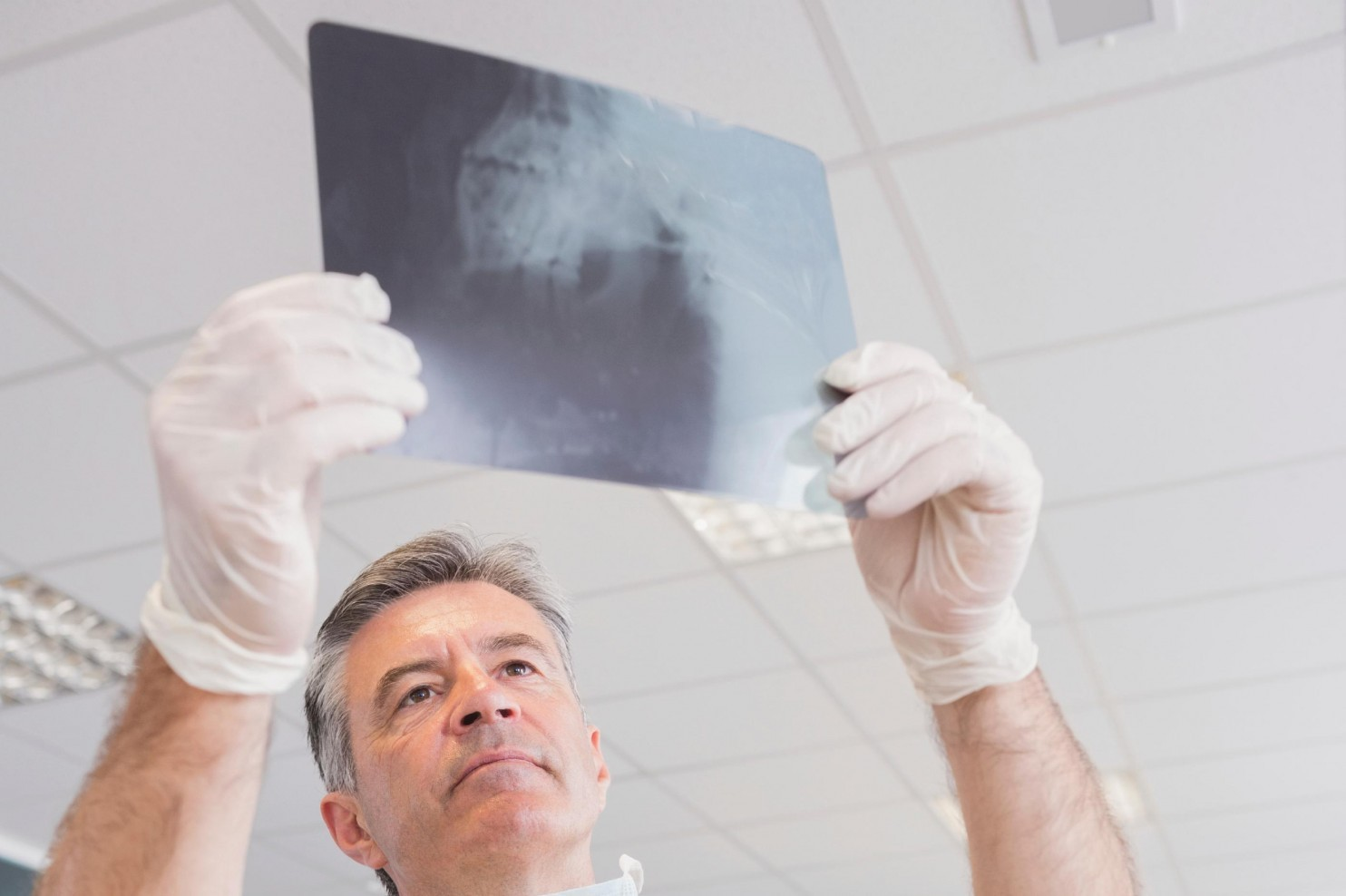 Does Gum Disease Have a Link to Cancer?