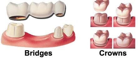 dental-crown-new-braunfels-tx